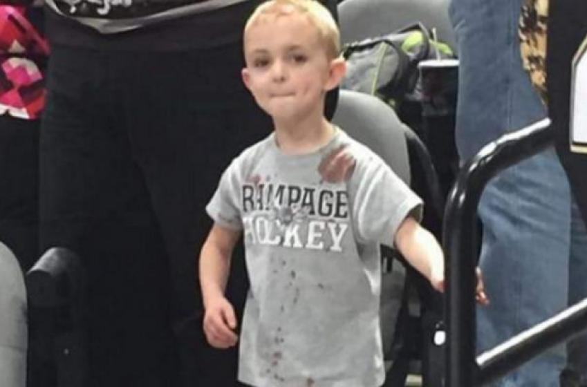 5 year old rushed to ER after being hit by a puck, and responds like a hockey player.