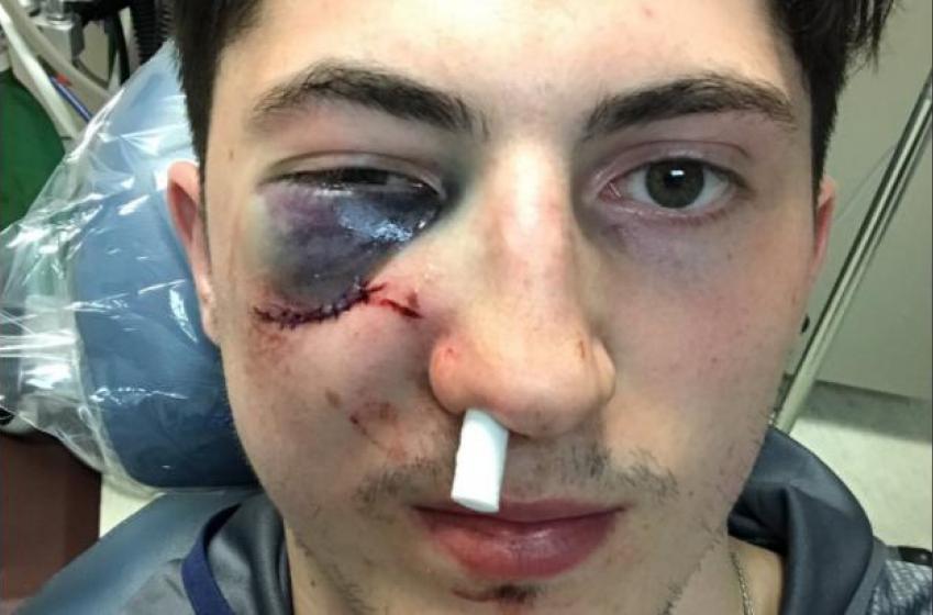 BREAKING : Shocking development following Werenski's injury!