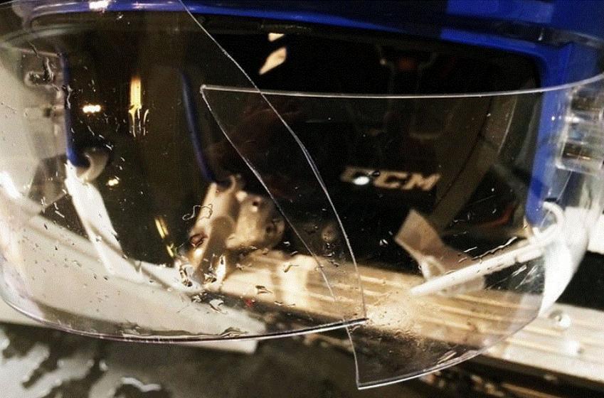 Breaking: Star defenseman nearly loses his eye after visor explodes at World Championship.